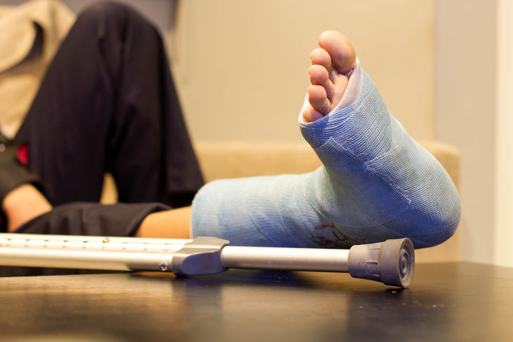 Broken Bones Lawsuit Loans- Delta Lawsuit Loans