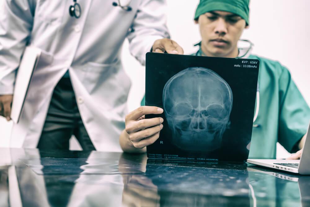 Brain Injury Lawsuit Loans - Delta Lawsuit Loans